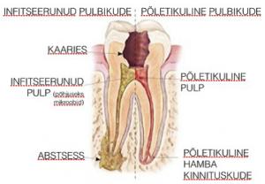 tartu ülikooli kliinikumi hambaravi hinnakiri